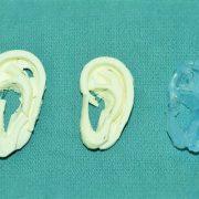 rekontrukcja ucha